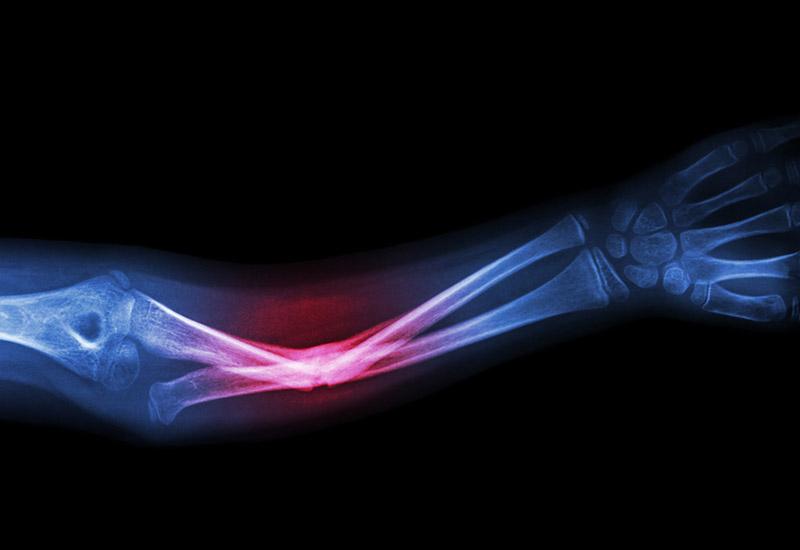 grover law firm broken bones